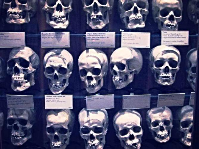 The skull collection at the Mutter Museum.