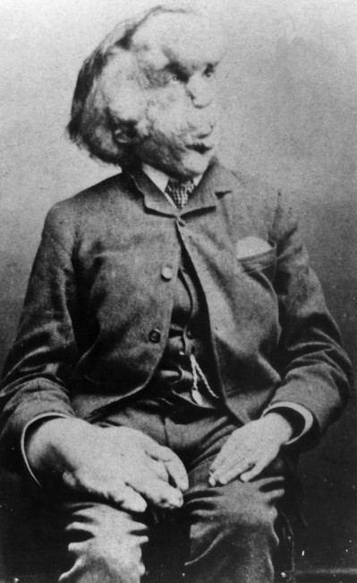 The Elephant Man, Joseph Merrick | © The Arty Farty Cool Dude/WikiCommons