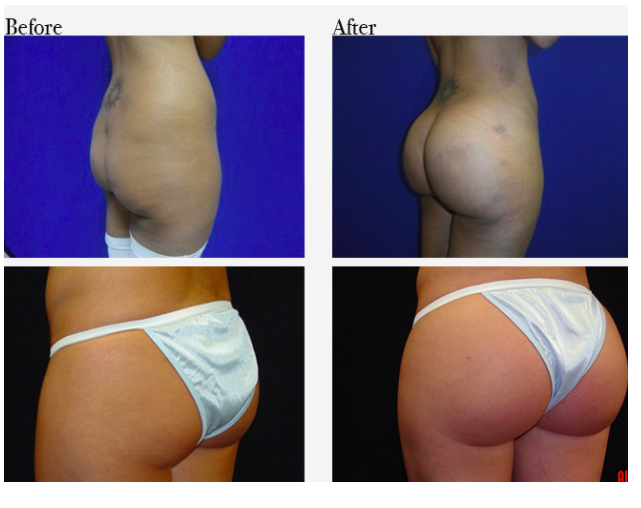 Before and after Brazilian butt lift Courtesy of RealSelf