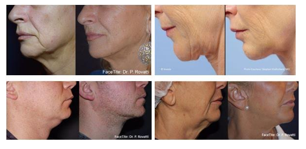 Neck lift Courtesy of RealSelf